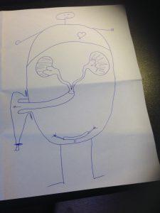 Doktor Yrs teckning över hur det blir efter operationen