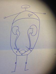 Doktor Yrs teckning över hur urinrören tas bort